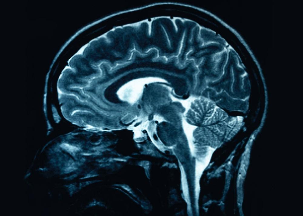 cerebro-humano