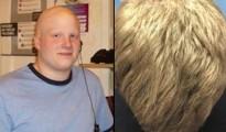 pelado con pelo